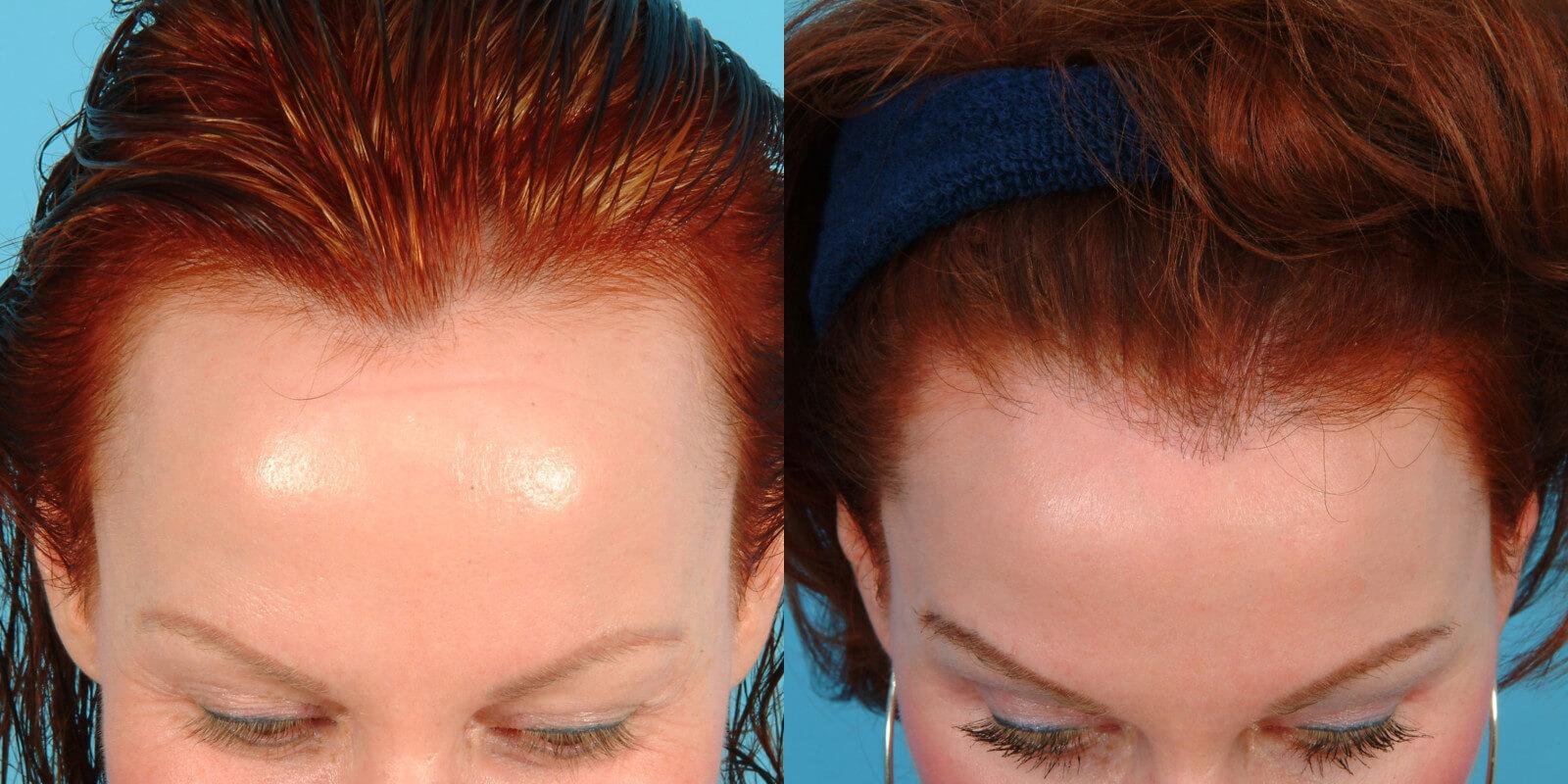 Female Hairline Lowering 183 Bauman Medical