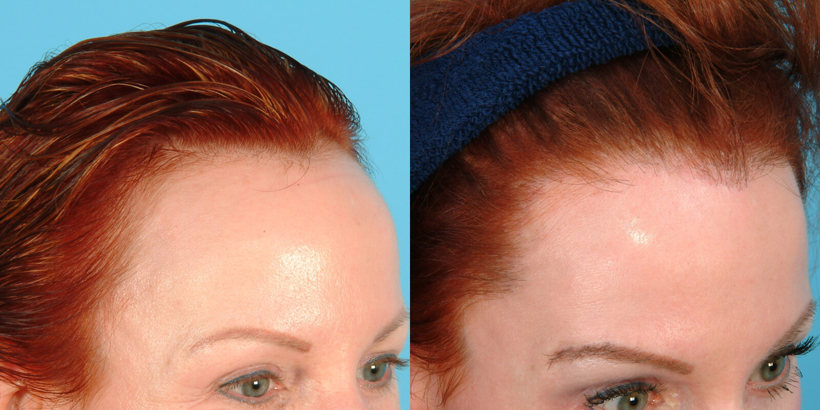 NewHairLine - Hair Replacement Systems,Toupee,Hairpieces ...