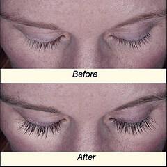 Eyelash Latisse Before After Eyebrow, Eyelash, Scars, etc. (special cases)