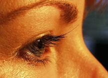 Eyelash-Transplant-6wks-Post