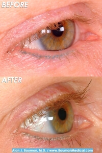 Before and After Eyelash Transplant by Dr. Alan Bauman