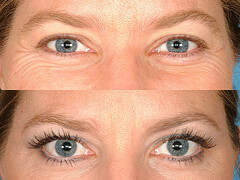 Eyelashes Befor After Latisse Eyelash Transplant Procedure