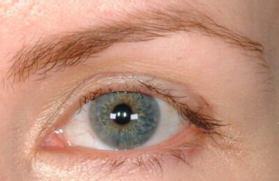Eyelashes Damaged Eyelash Transplant Procedure