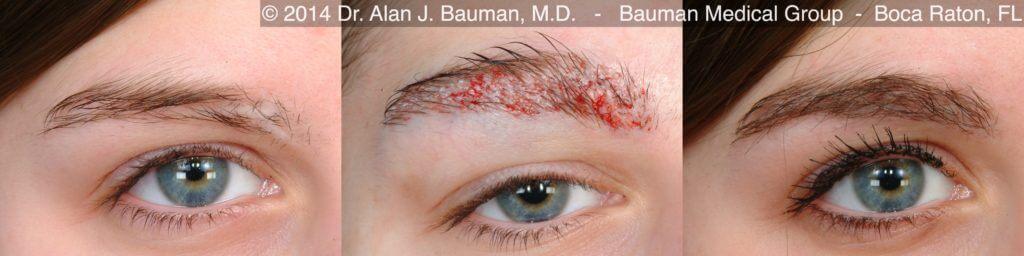 Female eyebrow transplant scar DrAlanBauman Pre24hr12mo 1024x256 Eyebrow Transplantation