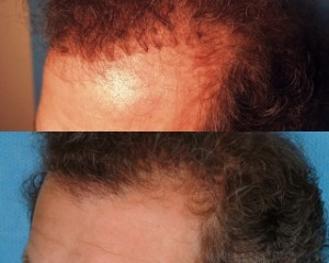 Hairline-Refinement