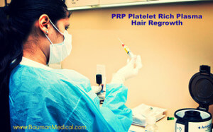 Platelet-Rich-Plasma-Hair-Growth