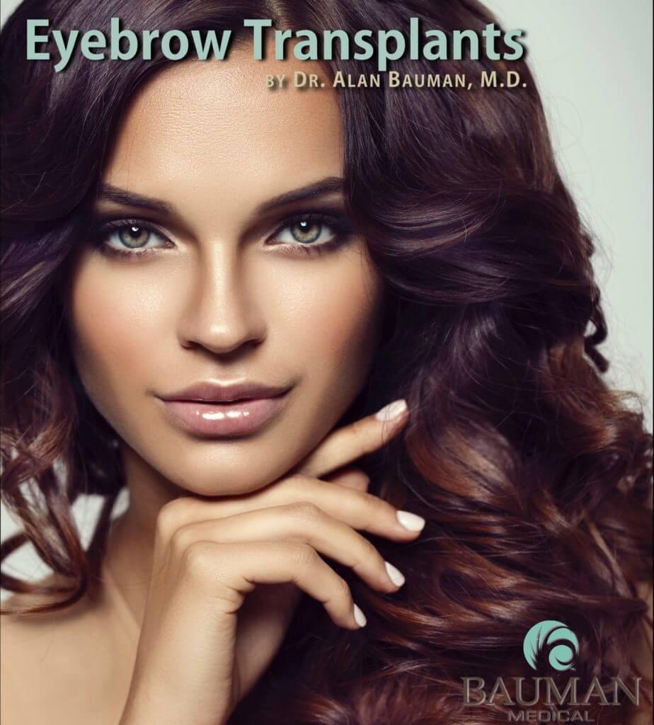 Screen Shot 2016 09 14 at 11.01.11 AM 924x1024 Eyebrow Transplantation