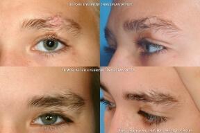 Teenage Male Eyebrow Transplant Eyebrow, Eyelash, Scars, etc. (special cases)