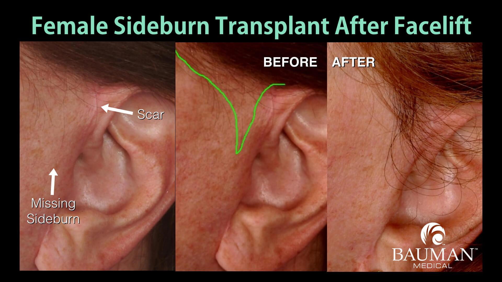 Plastic surgery related hair loss bauman medical group case study 2 missing sideburn urmus Gallery