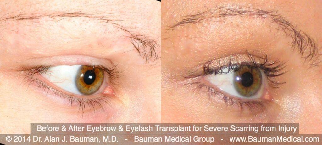 eyebroweyelash scar transplant DrAlanBauman 1024x463 Eyebrow Transplantation