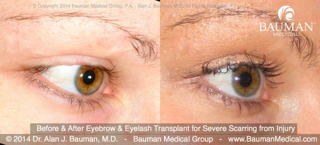 before after eyelash eyebrow scar transplant implant dr alan bauman