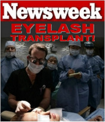 Dr. Alan Bauman's Eyelash Transplant featured in Newsweek