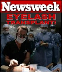 eyelash transplant newsweek DrAlanBauman Eyelash Transplant Procedure