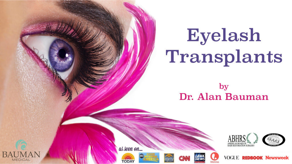 eyelash transplants by dr alan bauman 1024x576 Eyelash Transplant Procedure