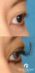 eyelash transplant extreme lashes2 dr alan bauman 146x300 Eyelash Transplant Procedure