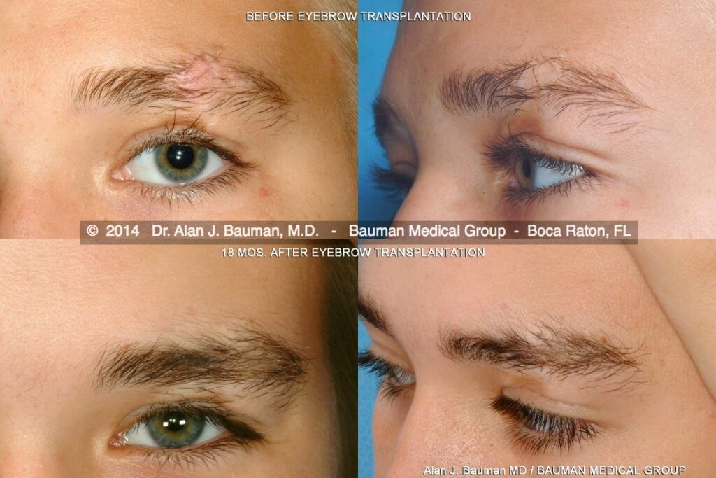 male-eyebrow-scar-transplant-DrAlanBauman eyebrow transplant transplantation scar by dr alan bauman florida before after