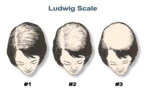 Bauman Medical Female Hair Loss 101 Ludwig image Hair Loss 101