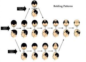 norwood hamilton baldness scale bauman medical 300x217 Hair Loss 101