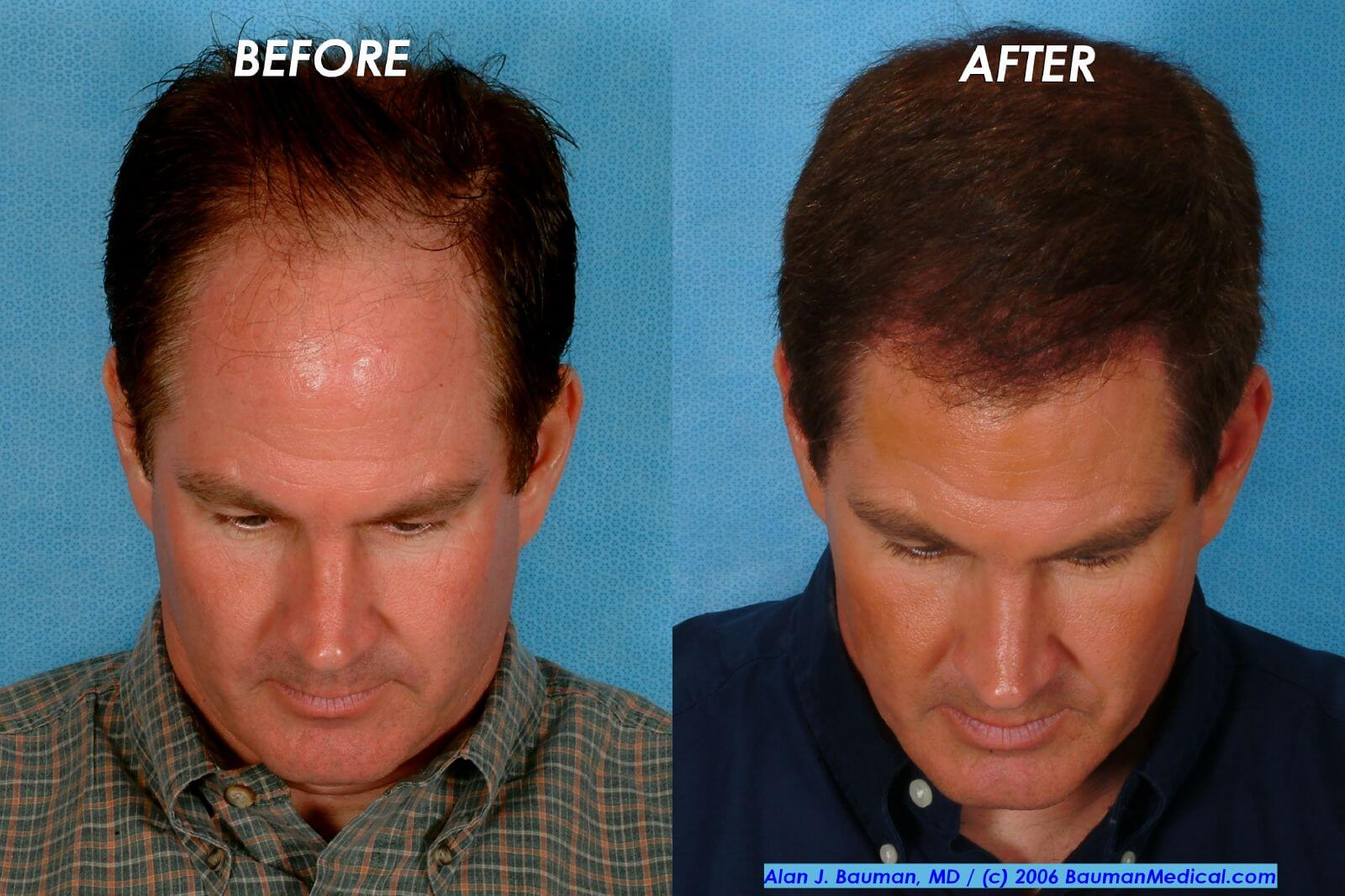 how to make hair transplant grow faster