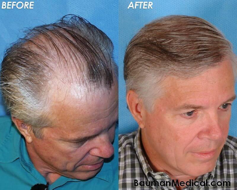 50 Year Hair Newhairstylesformen2014 Com
