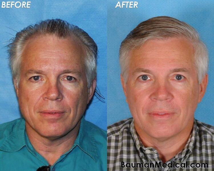 50-Year-Old Male Hair Transplant   Bauman Medical Group