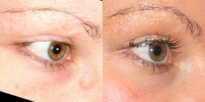 Eyelash Transplant Results - Bauman Medical Group