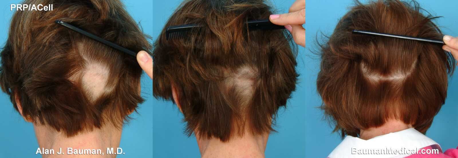Female hair loss : causes and treatment | Life and style ...