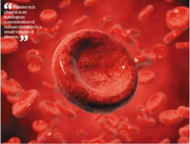View Platelet Rich Plasma (PRP) Photos on Flickr