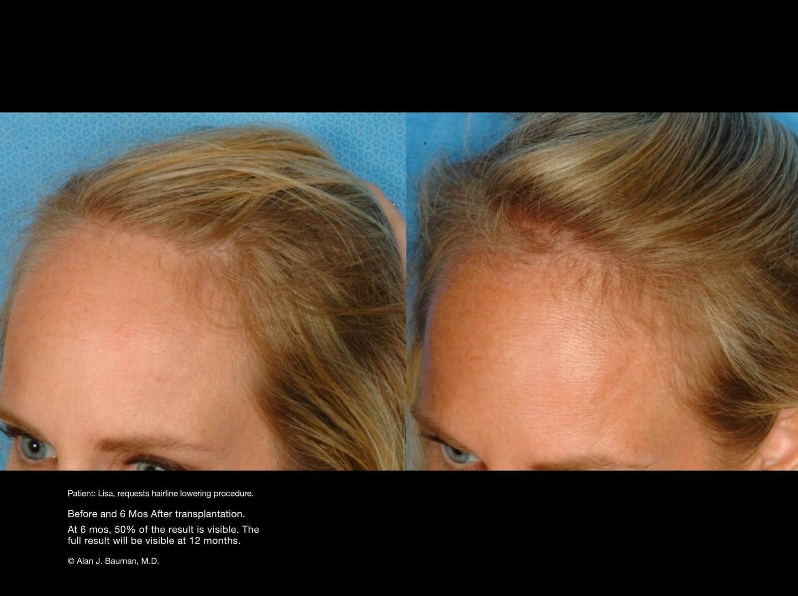 Male Hair Transplant Results - Dr Alan Bauman-3601