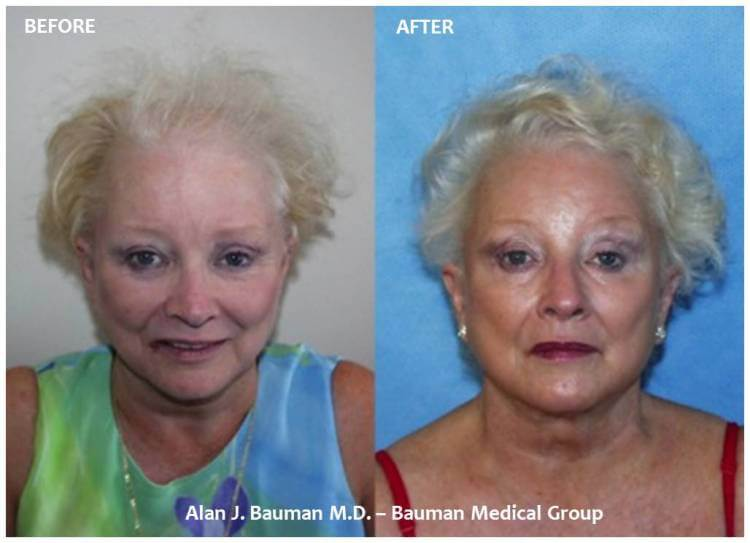 Female Hair Transplant | Bauman Medical Group