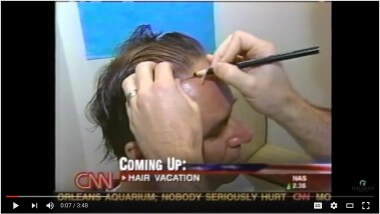 Hair Restoration Vacation – As seen on CNN