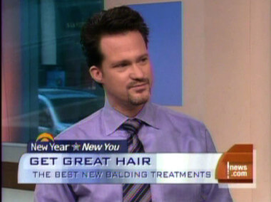 VIDEO: NeoGraft FUE Hair Transplant on CBS Early Show w/ Dr. Alan Bauman