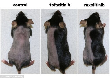 Pharmacologic inhibition of JAK-STAT signaling promotes hair growth