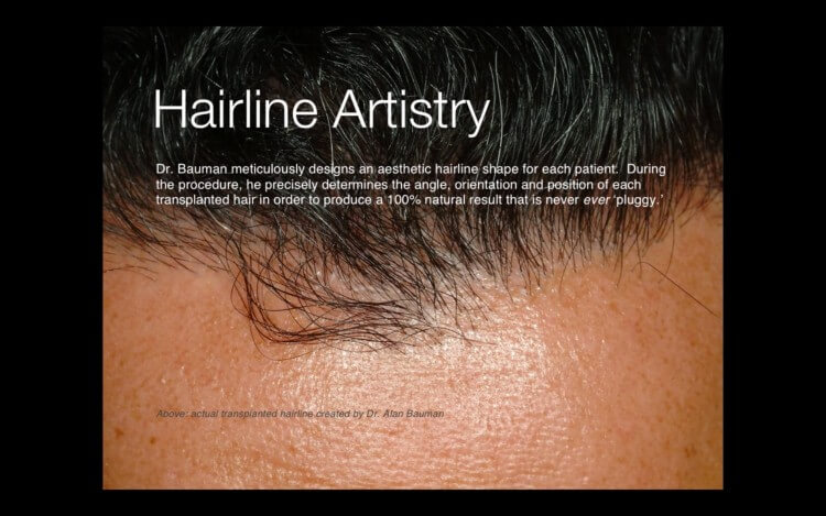 VIDEO: Hair Transplant Before and After Results