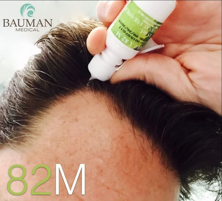 Where To Buy Formula 82M Compounded Minoxidil