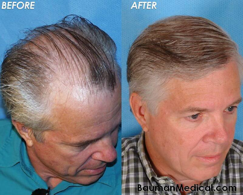 At Bauman Medical, we stand by our promise of delivering exceptional  results every time. Take a look at our before and after photo gallery to  see the ...