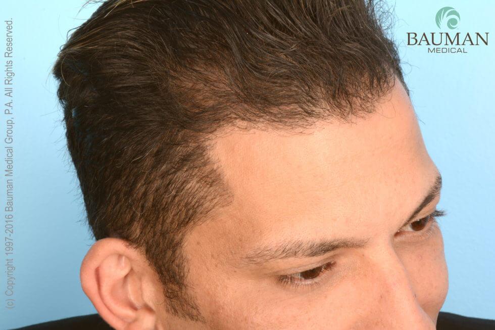 Article An Undetectable Hair Transplant 183 Bauman Medical