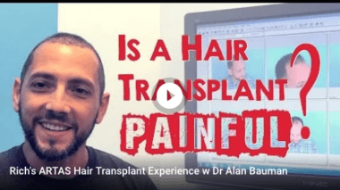 VIDEO: Is a Hair Transplant PAINFUL?