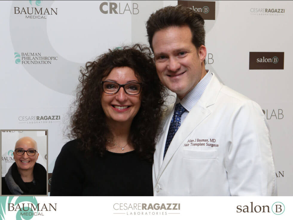 Dr. Bauman & Claudia, Alopecia Areata Totalis patient before and after photo of CRLAB CNC Hair & Scalp Prosthesis