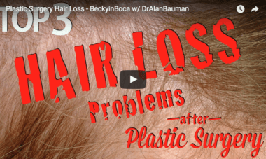 VIDEO: Plastic Surgery and Hair Loss – BeckyinBoca w/ DrAlanBauman