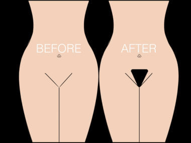 What is a Pubic Hair Transplant?