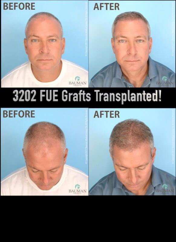 Video Patient Darrin S Review Of Artas Fue Hair Transplant With Dr Alan Bauman