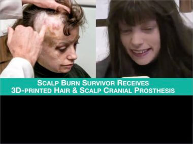 VIDEO: Burn Survivor Receives CNC Hair and Scalp Cranial Prosthesis 26 Years Later