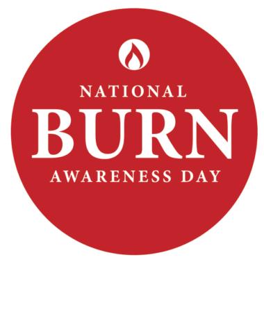 Burn Awareness Day Videos: Scalp Burn Hair Replacement with CNC Hair Prosthesis #BeBurnsAware