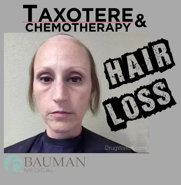 Taxotere Hair Loss and Baldness