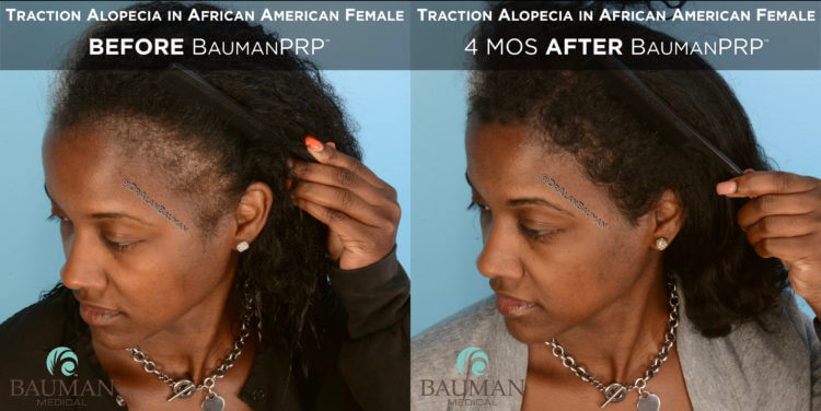 Traction Alopecia Before After PRP Platelet Rich Plasma in African American