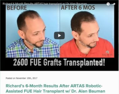 ARTAS Robotic FUE Hair Transplant Richard 6 Month Results