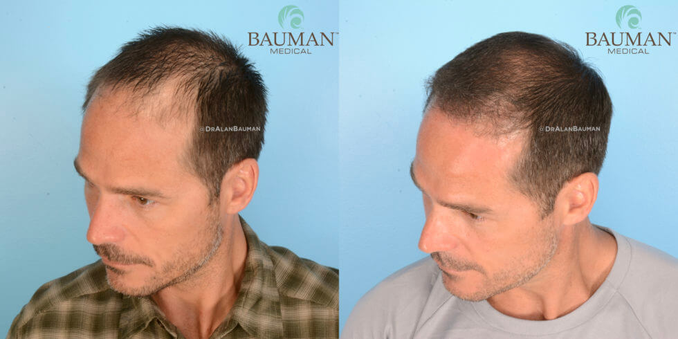 SmartGraft FUE Hair Transplant Results from Dr. Alan Bauman